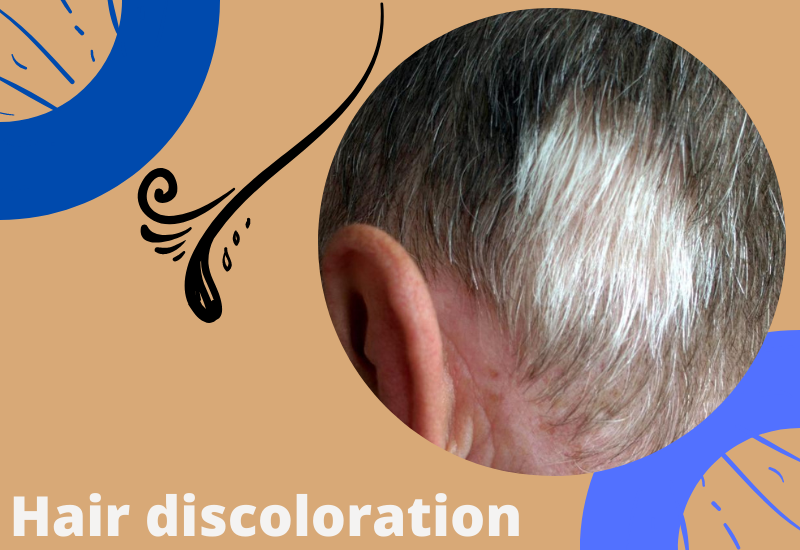 Hair discoloration